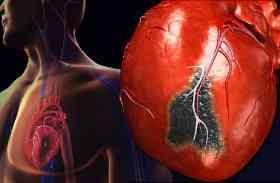 खून पतला करने की नई दवा जल्द, किडनी-लीवर भी सुरक्षित रहेगा