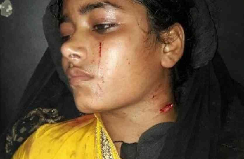 युवकों ने पांच सौ रूपये के विवाद में मुस्लिम युवती को चाकू मारी दी