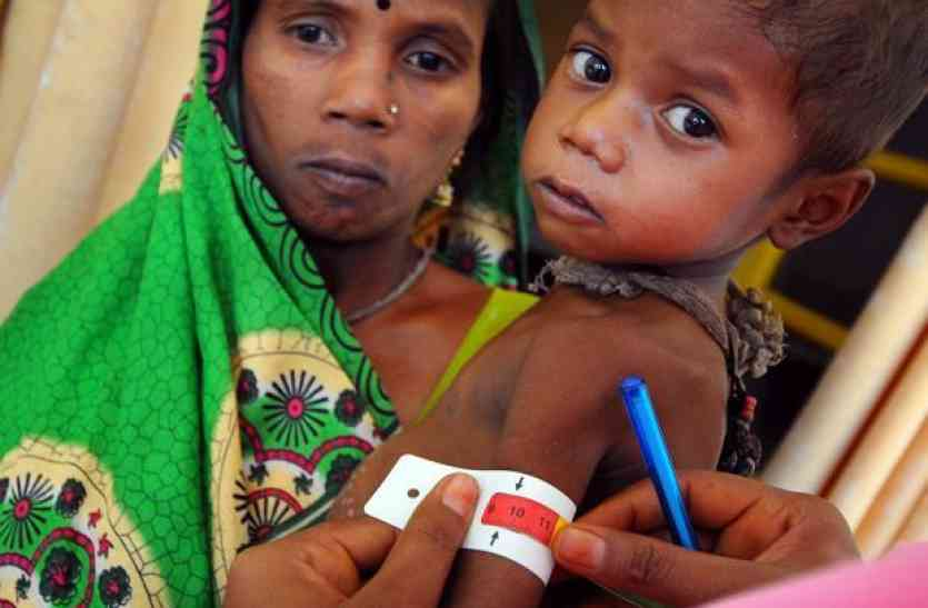 आशा कर रहीं कुपोषित बच्चों की पहचान : न्यूट्रिशन सेन्टर दूर करेगा कुपोषण