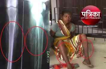 महिला के शरीर से कैसे निकलती हैं लोहे की कीलें देखें VIDEO...