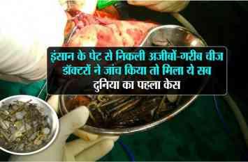 इंसान के पेट से निकली अजीबो-गरीब चीज, डॉक्टरों ने जांच किया तो मिला ये सब, दुनिया का पहला केस