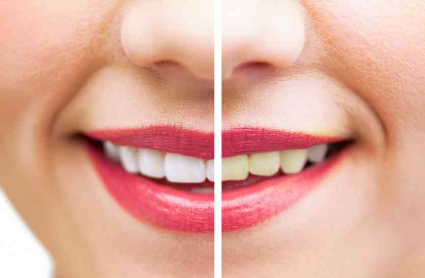 Remove The Yellowing Of The Teeth Diet Fitness News In Hindi