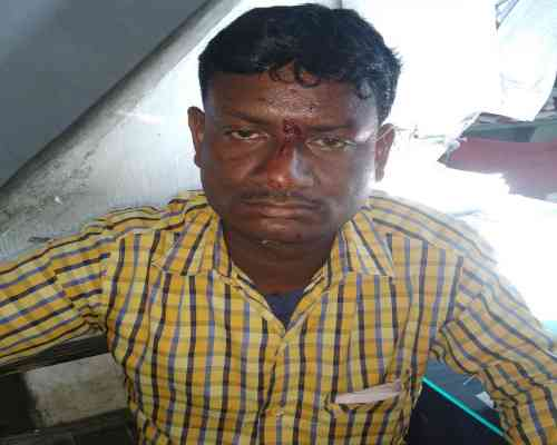 Injured Auto driver