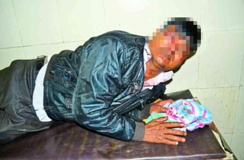 बंदूक की नोंक पर गुंड़ों ने छीन लिया मासूम,जख्मी पिता ने नहीं छोड़ा कलेजे के टुकड़े का हाथ