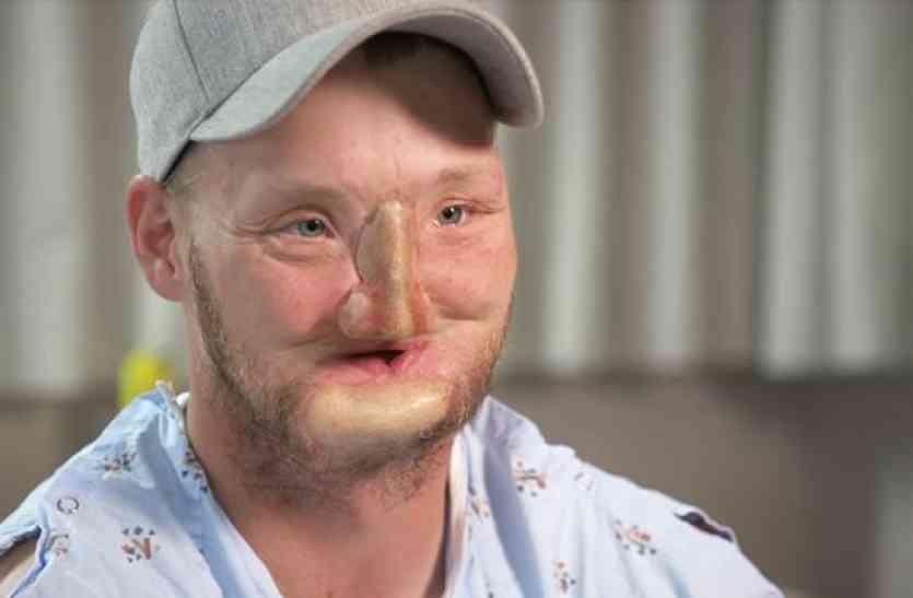 डिप्रेशन में खुद को गोली मारने के बाद चेहरे का हो गया ऐसा हाल, फिर जो हुआ उसपर विश्वास करना मुश्किल