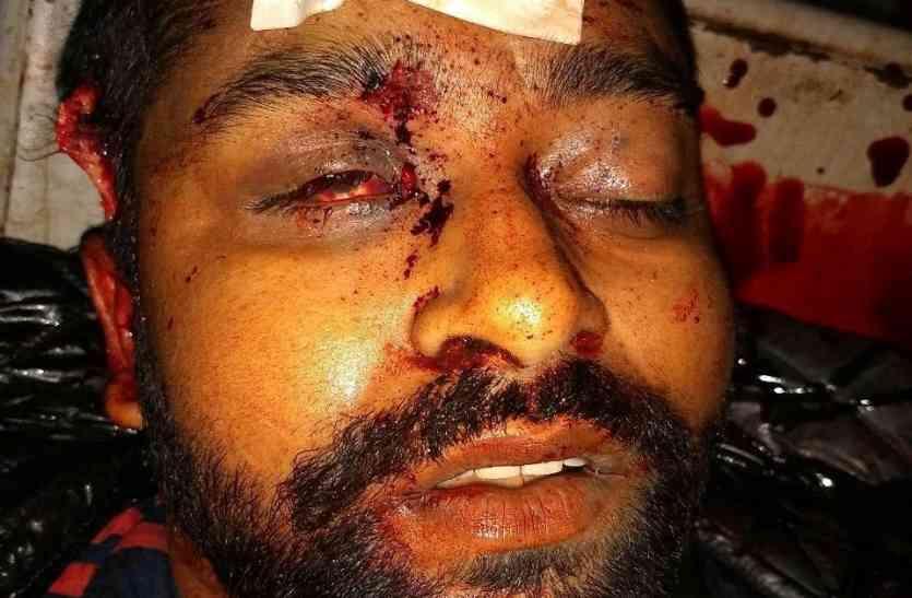 नीमराणा में लूट के आरोपी अरुण गुर्जर का पुलिस ने मार गिराया, फरीदाबाद में हुआ एनकाउंटर