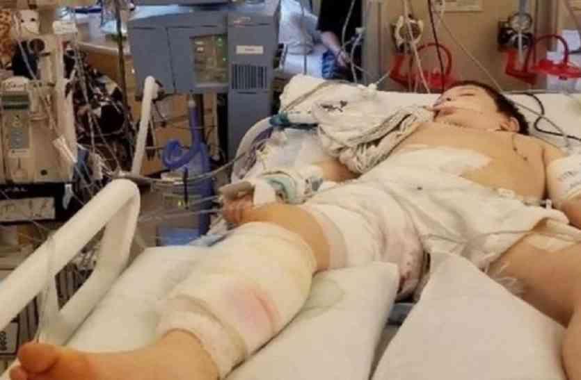 8 साल के बच्चे के शरीर में बसेरा बना चुके थे मांस खाने वाले कीड़े, फिर ऐसे हुई दर्दनाक मौत