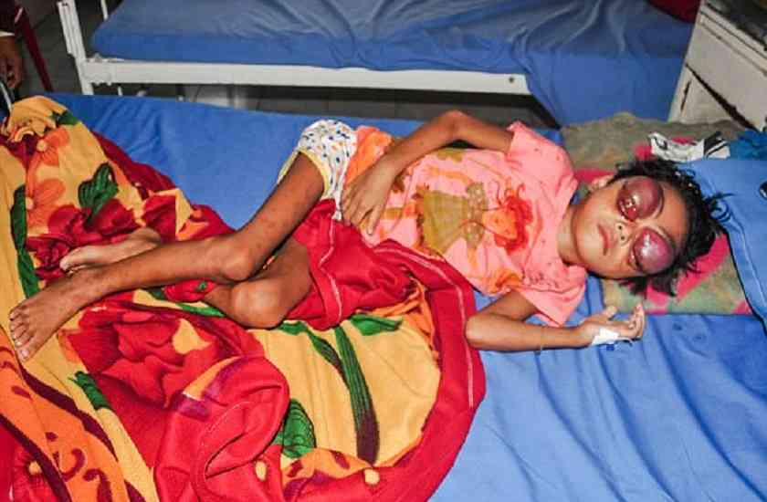 tripura,cancer,pictures,painkillers,chemotherapy,deteriorated,Bleeding,