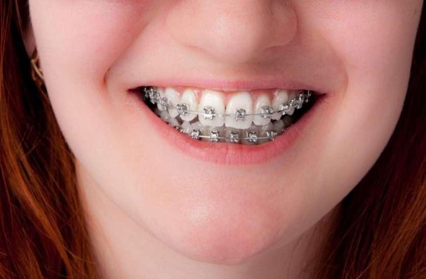 टेढ़े-मेढ़े दांतों के लिए कम उम्र में ही लगवाएं ब्रेसेज