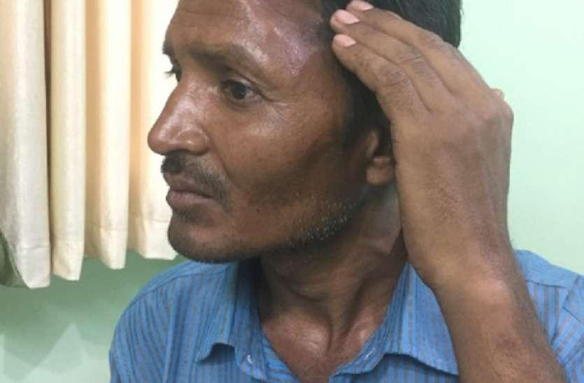 देश में पहली बार: हादसे में याददाश्त गई, मुंबई में डॉक्टर्स ने सिर की हड्डी पेट में रखकर बचाई ज़िन्दगी