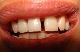 सामुद्रिक शास्त्र से जानिए दांतों के बीच के गैप का रहस्य