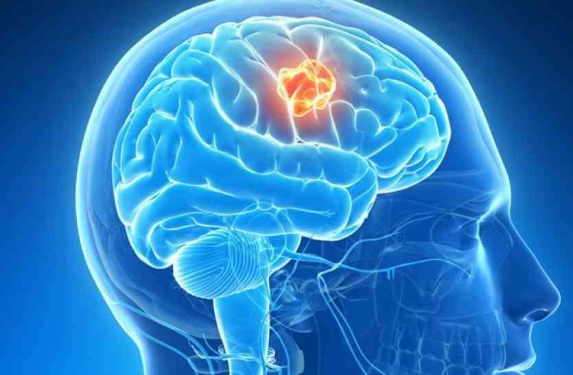 World Brain Tumor Day : ब्रेन ट्यूमर दिवस पर खास रिपोर्ट , ट्यूमर से जुड़ी मुख्य बातें और उनका सच
