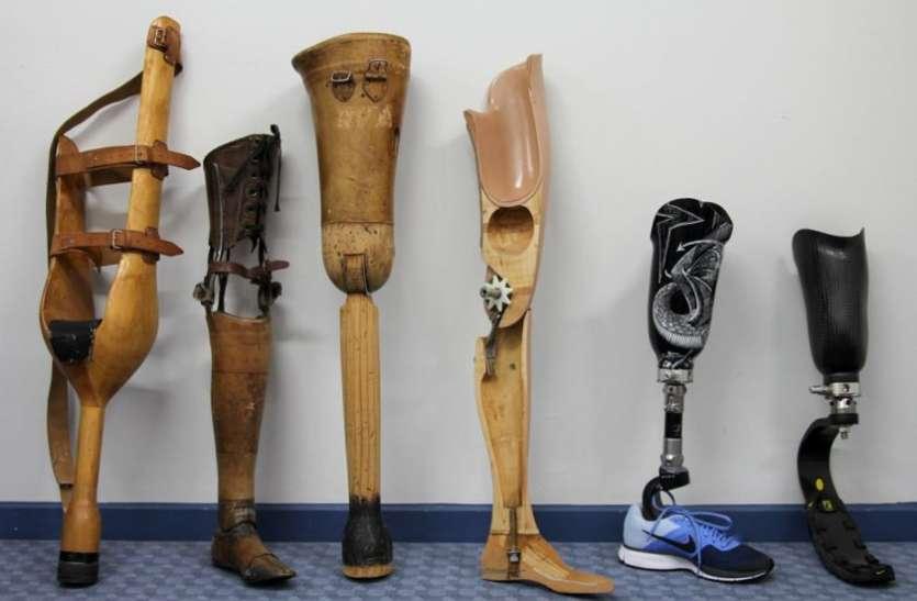 कृत्रिम पैर से जीवन में नया कदम