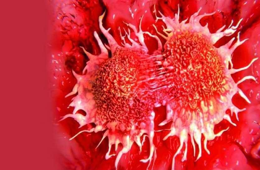 metastatic cancer kya hai tratament cu viermi elecampane