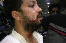 सपा नेता के पुत्र पर जानलेवा हमला, आरोपी गिरफ्तार...