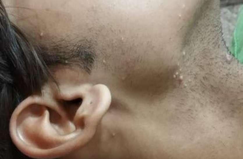 चेहरे पर उभरे ये दाने बिगाड़ सकते हैं आपकी सुंदरता, हल्के में लेना कहीं पढ़ न जाए मंहगा