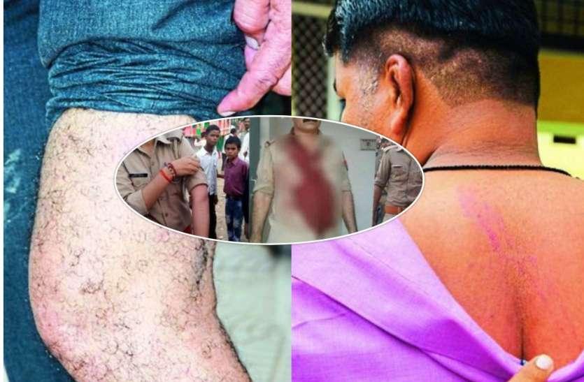 चोरी के आरोपित को पकडऩे गये पुलिसकर्मियों का किया बुरा हाल, एक घंटे तक बंधक बनाकर की मारपीट
