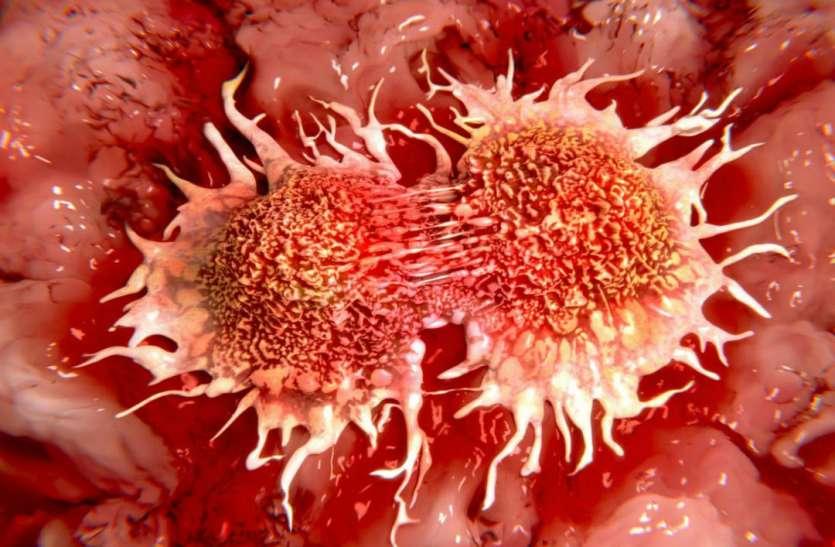महिलाओं को जल्द होता है यह कैंसर, न करें इन गलतियों को इग्नोर, ये हैं लक्षण
