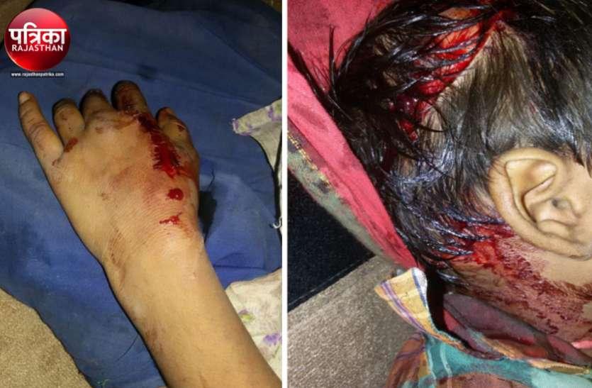 बांसवाड़ा : घर के बाहर खेलते भाई-बहिन पर कुत्ते ने किया हमला, सिर और हाथों को बुरी तहर नोंचा
