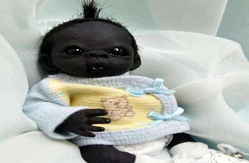 ये है दुनिया का सबसे काला बच्चा, गिनीज़ वर्ल्ड रिकॉर्ड्स ने माना चमत्कार! हैरान कर देगा पीछे का सच