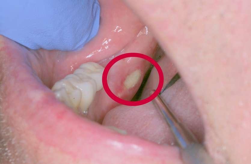 फंगल इंफेक्शन से भी होते हैं मुंह में सफेद पैच