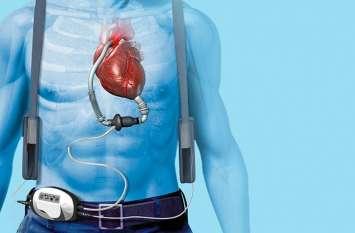 दिल की पम्पिंग में मदद करती एलवीएडी,गजब की है ये तकनीक