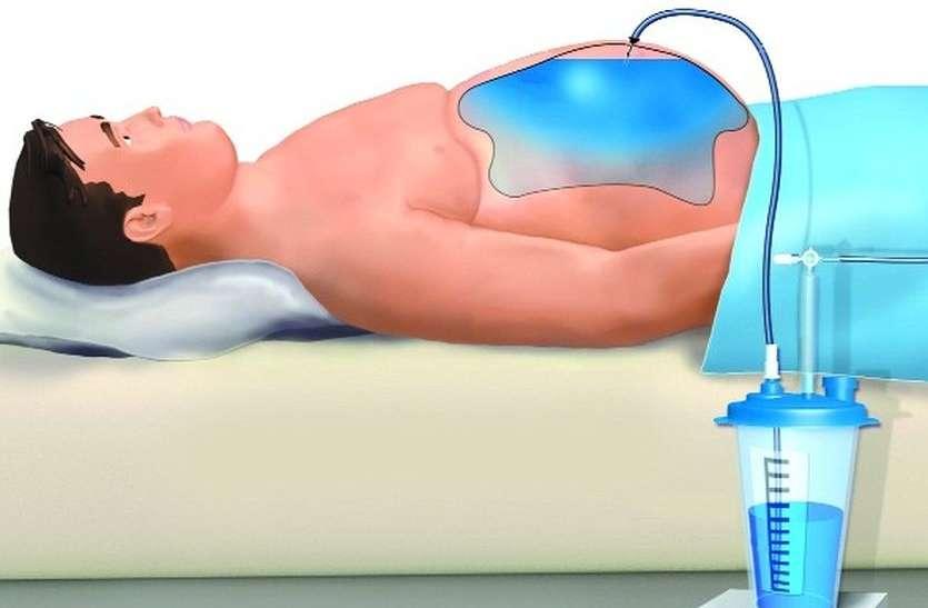 पेट में पानी भरना, खून की उल्टियां होना पोर्टल हाइपरटेंशन का लक्षण