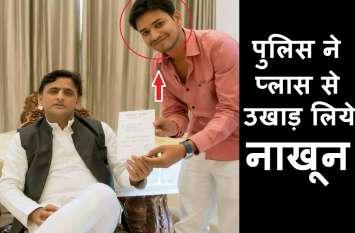 CM योगी को काला झण्डा दिखाने की सपा नेता को मिली खौफनाक सजा, पुलिस ने प्लास से नाखून तक उखाड़ लिये