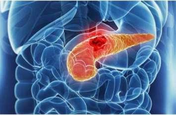 कैंसर के लाखों मरीजों के लिए बड़ी खुशखबरी: BHU ने खोज निकाला कैंसर सेल्स को खत्म करने का उपाय