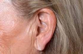 कान के नीचे हैं अगर इस तरह की लकीरें तो हो सकती है दिल की बीमारी