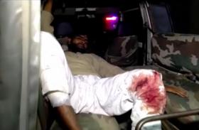 मुठभेड़ से फिर थर्राया उत्तर प्रदेश का यह शहर, पुलिस ने बदमाश को किया पस्त