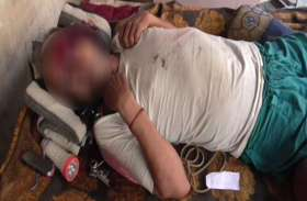 UP में भाजपा नेता की गोली लगने से मौत, इस सीट पर बोलती थी तूती