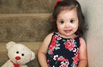 दो साल की इस बच्ची को है दुर्लभ बीमारी, मां ने सोशल मीडिया पर शेयर किया दर्द