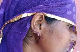 लुटेरों ने महिला के कानों से तोड़ी सोने की गुट्टियां, कर दिया लहूलुहान
