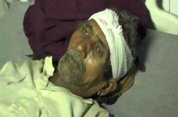सौ रुपये के विवाद में दबंगों ने पिता पुत्र पर किया जानलेवा हमला