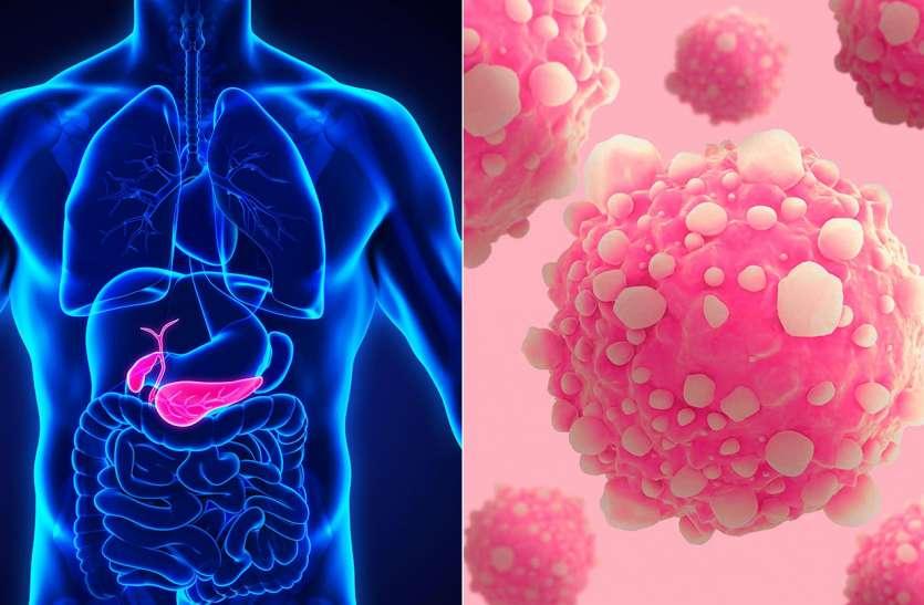 पैंक्रियाज कैंसर में दिखता है पीलिया जैसा लक्षण