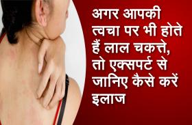 अगर आपकी त्वचा पर भी होते हैं लाल चकत्ते, तो एक्सपर्ट से जानिए कैसे करें इलाज