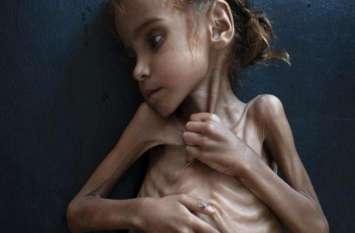 संयुक्त राष्ट्र: यमन जीता जागता नरक बना, कुपोषण और बीमारियों से हर साल मर रहे हजारों बच्चे