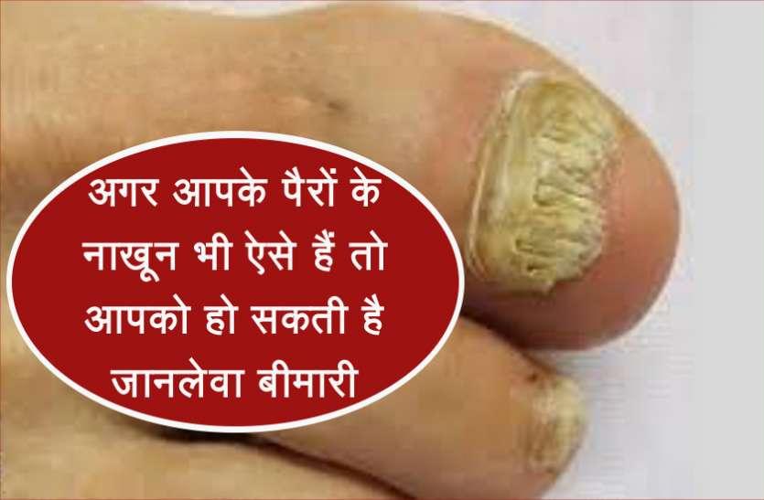 अगर आपके पैरों के नाखून भी एेसे हैं तो आपको हो सकती है जानलेवा बीमारी