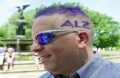 अल्जाइमर का खतरा कम करता है कोलेस्ट्राल नियंत्रण