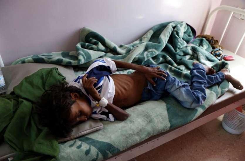 यमनः धार्मिक संगठन का दावा, तीन साल में कुपोषण से 85 हजार बच्चों की