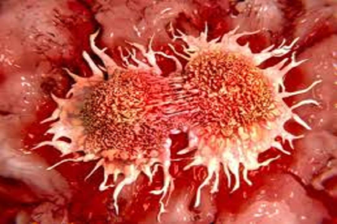 यूरिन में दिखे ये लक्षण तो न करें इंग्नोर, हो सकता है कैंसर