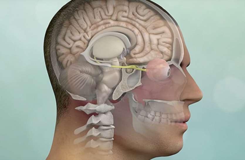 नई तकनीक : अब ब्रेन ट्यूमर की सर्जरी होगी कान के रास्ते