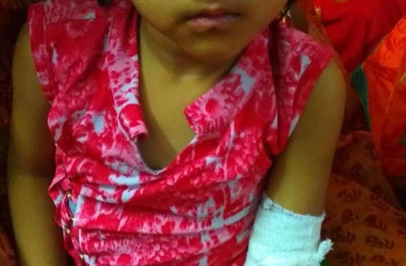 लूणकरनसर में बंदरों का आतंक, 4 वर्षीय बच्ची घायल