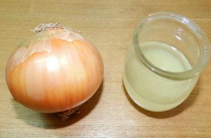 Onion Juice,nari