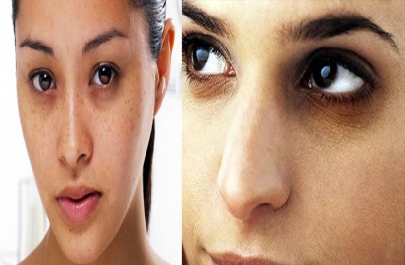 आंखों के नीचे काले धब्बे और बदसूरत चेहरे के लिए जिम्मेदार है शरीर का ये अंग