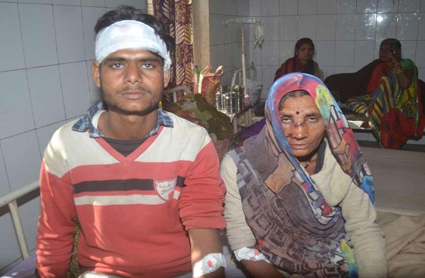 रिपोर्ट नहीं लिखी तो आधी रात तक अधिकारियों के बंगलों तक भटकते रहे खून से लथपथ घायल