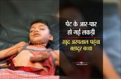 पेट के आर-पार निकल गई लकड़ी, खुद अस्पताल पहुंच गया बहादुर बच्चा, देखें VIDEO