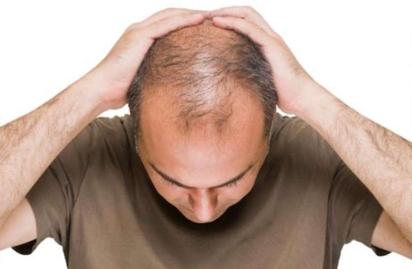 क्यों समय से पहले दिखने लगता है पुरुषों के सिर का चांद, और महिलाएं नहीं होती गंजेपन का शिकार