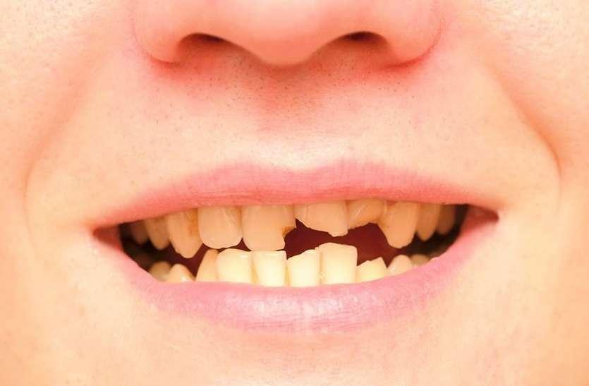 जरूरी खबर : दांत काले होने के साथ टूटने लगेंगे अगर पानी में इस चीज की मात्रा है ज्यादा